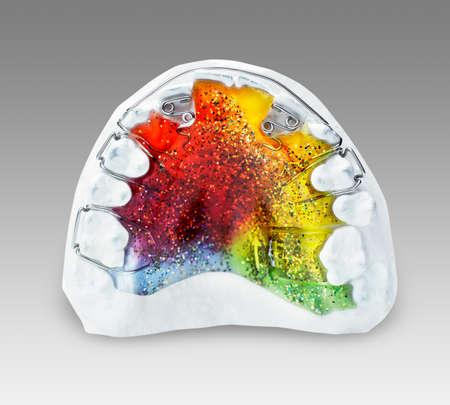 여러 가지 빛깔 된 두 개의 Z-스프링, 3 걸쇠, 입술 활과 확장을 위 치열 교정 장치를 맘에 하나의 치아에 나사 스톡 콘텐츠 - 31107609