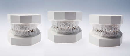 maxilla: Front view of a plaster study models on white background