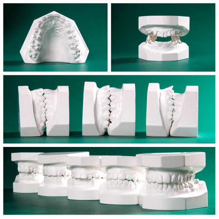 maxilla: Compilation picture of dental study models Stock Photo