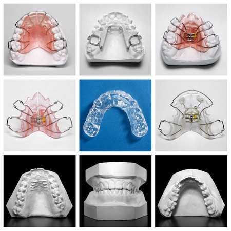 Compilation picture of essix retainer surrounded by orthodontic appliances and study models