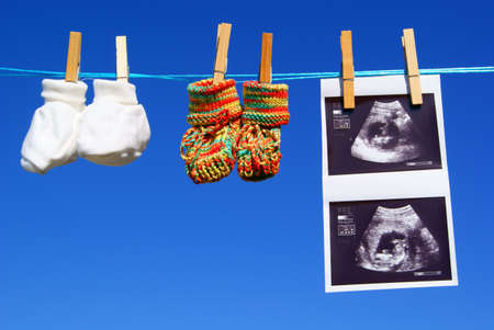 A ultrasound and baby booties are hanging at a clothesline Reklamní fotografie