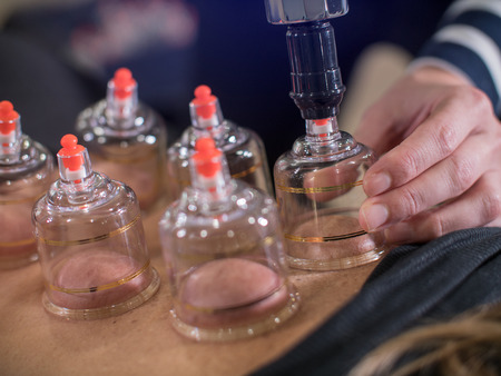 Detail image of cold cupping on patient