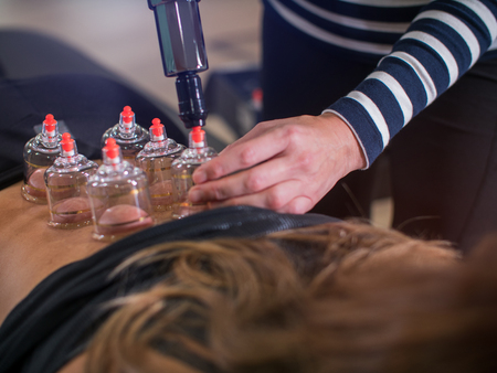 Alternative Medicine, Cupping therapy procedure