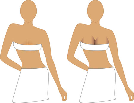 Breast Implants, before and after. Could be used for medical or cosmetic surgery. Vector