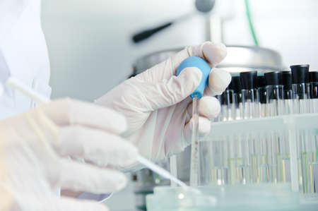 Medical laboratory research tools in the hands in gloves.