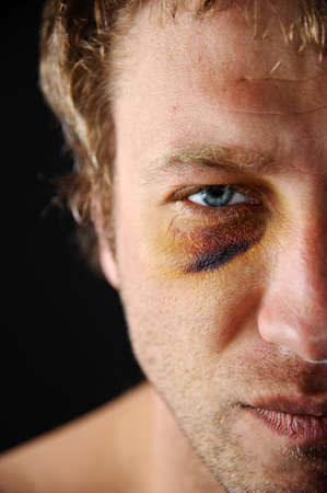 sore eye: Man with an injured eye. Closeup, half face. Stock Photo