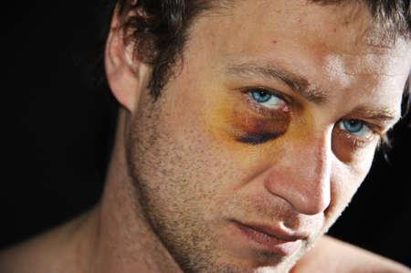 beaten: Man with an injured eye. Closeup.