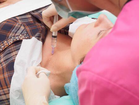 revitalization: Cosmetology procedure mesoteraphy. Rejuvenation revitalization, skin nutrition, wrinkle reduction. Doctor making microneedle procedure. Focus on syringe.