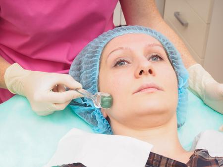 美容 mesoteraphy マイクロニードル プロシージャ。若返り、活性化、肌栄養、しわを減少します。