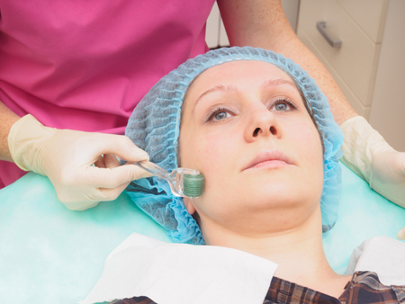 Cosmetology mesoteraphy microneedle procedure. Rejuvenation, revitalization, skin nutrition, wrinkle reduction. Stock Photo