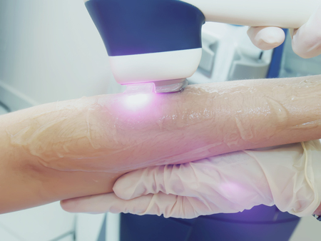 Laser hair arm removal epilation. Laser procedure in cosmetic salon. Imagens