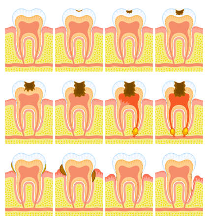dental caries: Internal structure of tooth