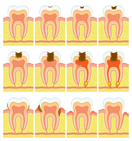 holten: Inwendige structuur van tanden