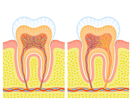 Internal structure of tooth Stock Vector - 13079038