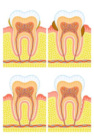 Estructura interna de los dientes: c�lculo dental caries, Vectores