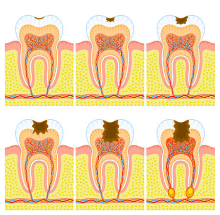 Internal structure of tooth: decay and caries Ilustrace