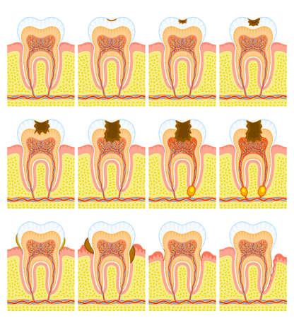 dientes con caries: Estructura interna de los dientes