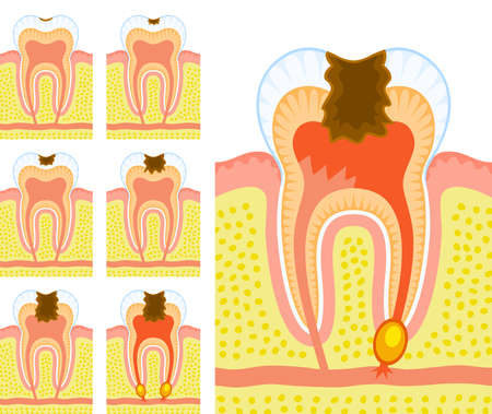 diente caries: Estructura interna del diente (caries y caries) Vectores
