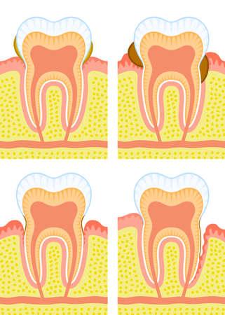dientes con caries: Estructura interna del diente