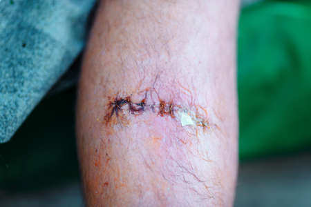 the stitched wound on a male leg close up Imagens