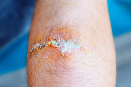 treatment of the wound with hydrogen peroxide