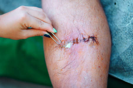 extraction of drainage from the wound on male leg with tweezers