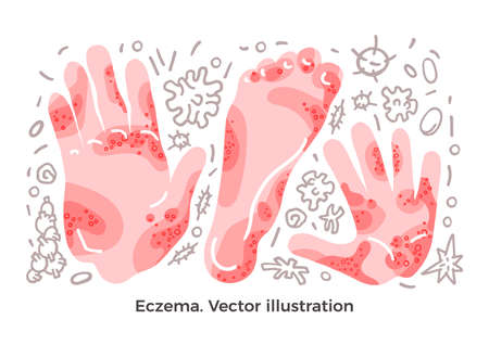 Vector color set Eczema, illness symptom, bacteria and methods of treatment Skin rashes on arm, leg, hand Art drawn illustration on white background Design concept for medicine poster Element isolated 向量圖像