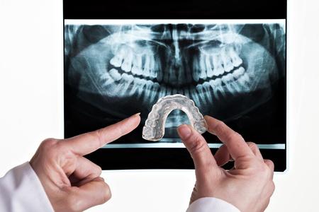 laboratorio dental: soluci�n dental