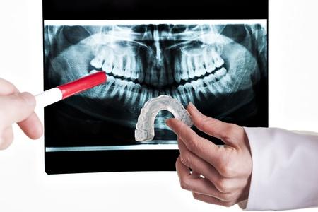 zatkanie: rozwiÄ…zanie stomatologiczne