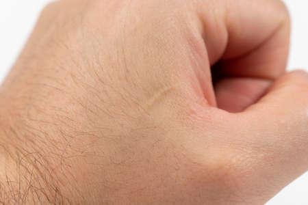 Close up scar on skin. Healed scar