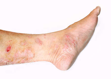 Psoriasis on white background
