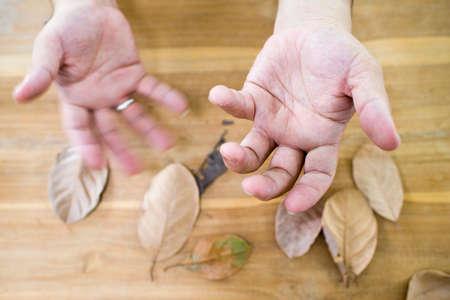 Tremor from Parkinson's disease in hands man