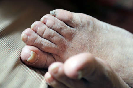 body part: damaged nails of woman s feet
