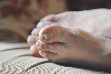 podiatrist: damaged nails of woman s feet