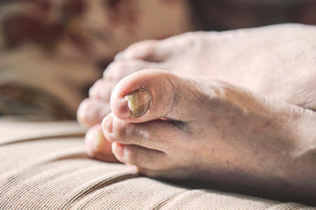 closeup of a persons feet with arthritis, damaged nails and athletes feet