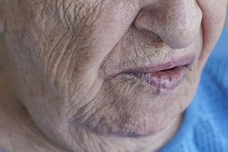 Primer plano de la boca de una persona mayor que tiene parálisis facial Foto de archivo