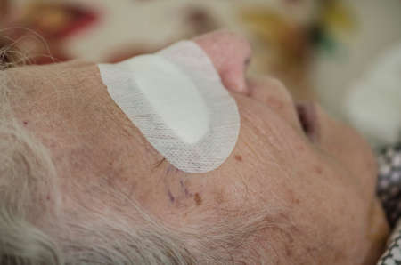 closeup eye of an old person with bandage after cataract operation