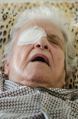 closeup of an old person with eye bandage after cataract operation
