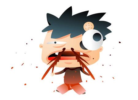 Dorky boy bleeding from the nose