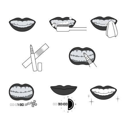 Whitening teeth process vector illustration Archivio Fotografico - 98788684