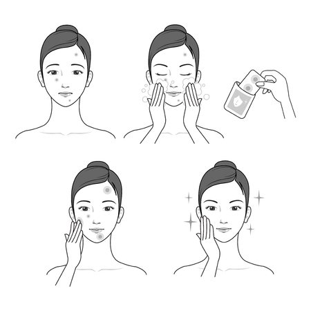 Treatment for pimples process vector illustration