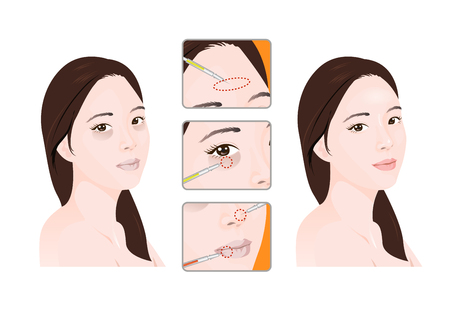 Vector - A plastic surgery for face and beauty, before and after illustration. 009