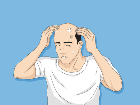 Hair loss cartoon, Young man and woman serious hair loss problem for hair loss concept Archivio Fotografico - 112261575