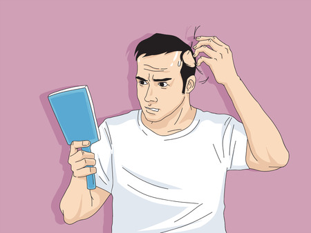 Hair loss cartoon, Young man and woman serious hair loss problem for hair loss concept vector illustration. Ilustracja
