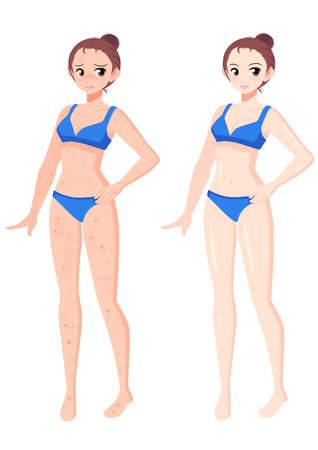 Plastic surgery concept, beauty health procedure vector illustration Archivio Fotografico - 122932105