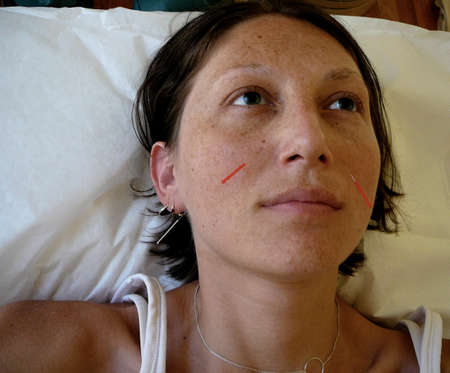 Alternative Medicine: Needles in Sinuses During Acupuncture Appointment photo