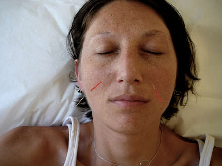 face centered: Alternative Medicine: Needles in Sinuses During Acupuncture Appointment