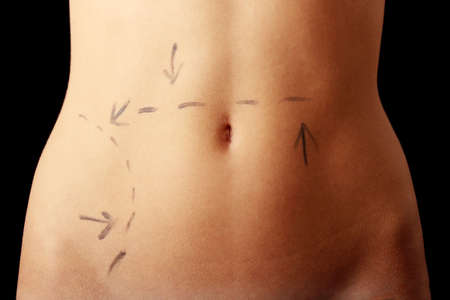 cosmetic surgery: caucasian womans abdomen marked with lines for abdominal cosmetic surgery