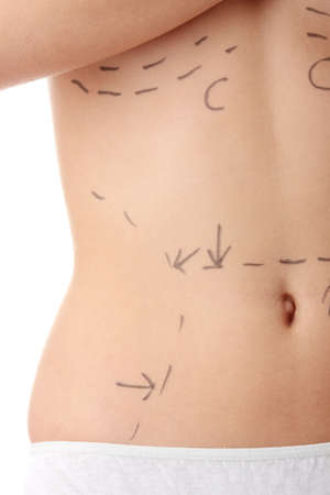 Closeup photo of a caucasian womans abdomen marked with lines for abdominal cosmetic surgery photo