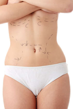 plastic: Closeup photo of a caucasian womans abdomen marked with lines for abdominal cosmetic surgery